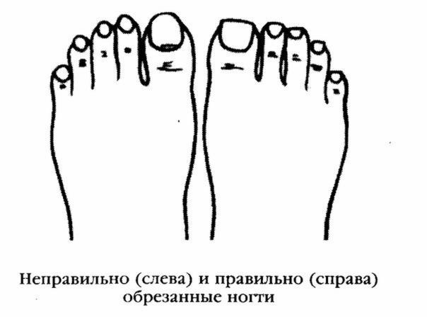 Правильно подстригать ногти на ногах