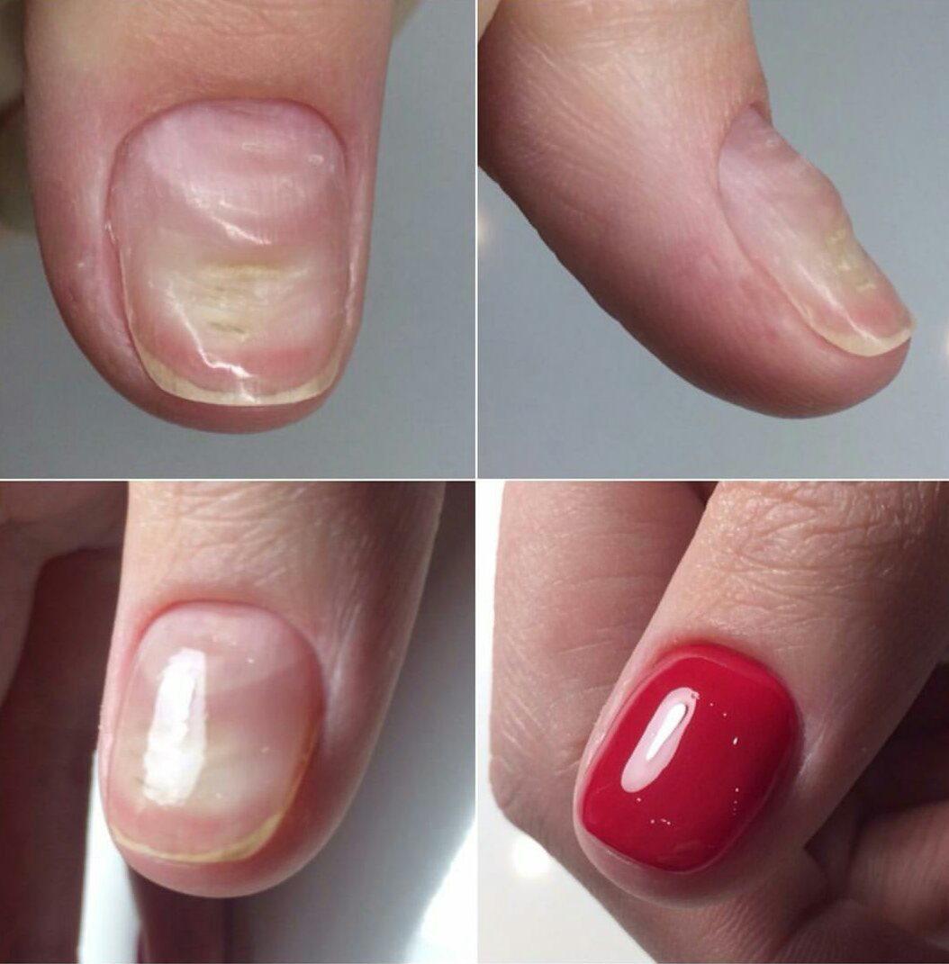 Что такое укрепление ногтей гелем фото