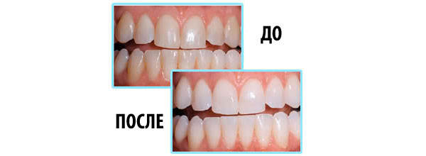 отбеливание зубов, до и после